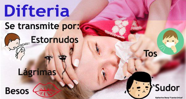 difteria-1