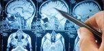 Demuestran una relación directa en el cerebro entre la ansiedad y el dolor