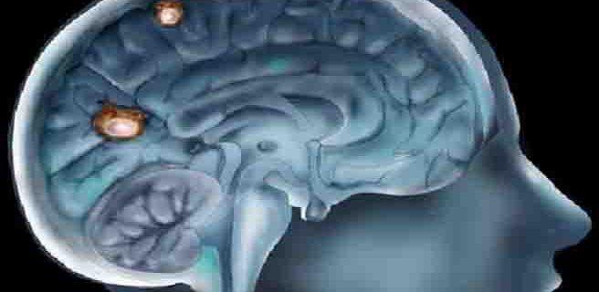 Impulsan un proyecto para inyectar fármacos en el cerebro de enfermos ataxia