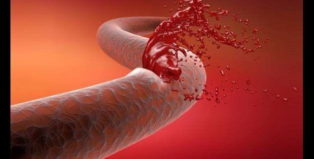 1800 colombianos viven con hemofilia