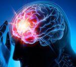 7 tips para prevenir un aneurisma