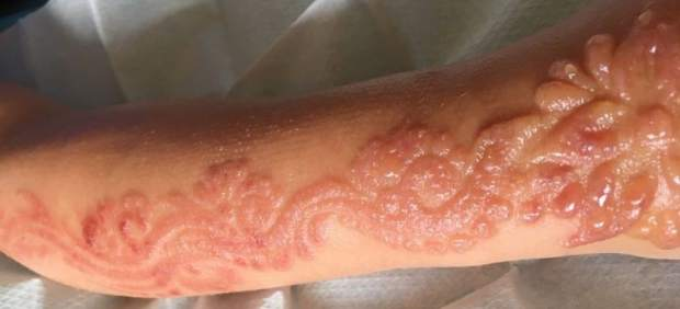 El tatuaje le desfiguró el brazo a la pequeñamientras estaba de vacaciones en Egipto