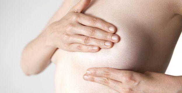 Qué es el cáncer inflamatorio de mama y por qué es tan difícil de diagnosticar