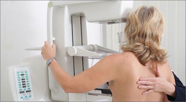 La mamografía puede detectar a tiempo el cáncer de mama