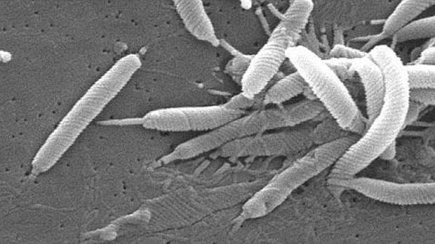 El Helicobacter Pylori influye en el desarrollo del cáncer estomacal