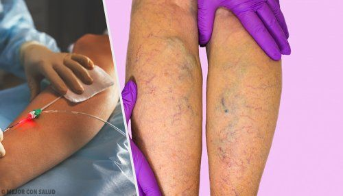 Tratamientos para las venas varicosas