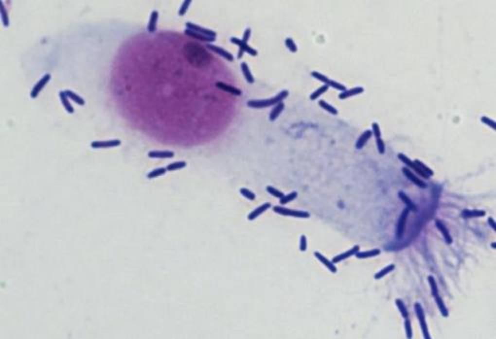 Las bacterias como los neumococos pueden tambien afectar el sistema nasal