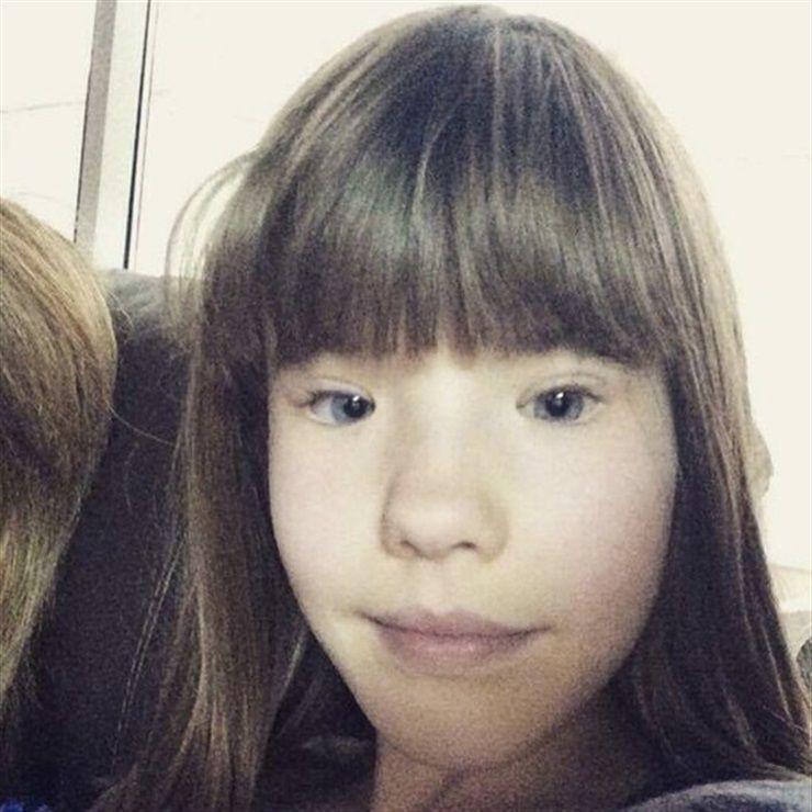 Holly tiene síndrome de párpados sin músculos