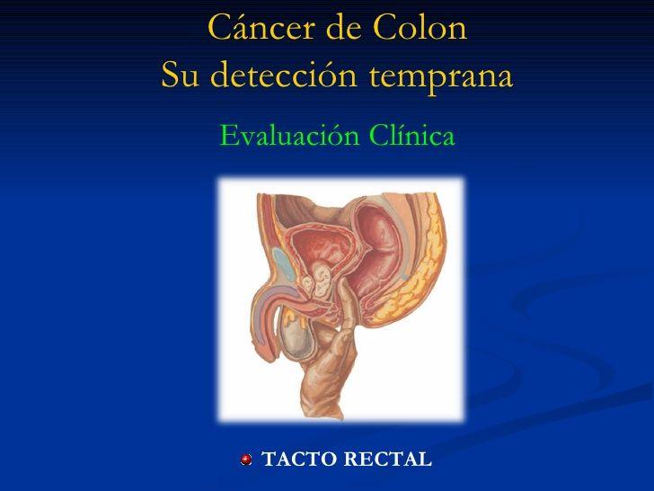 La detección del cáncer de colon temprana ayuda a salvar vidas